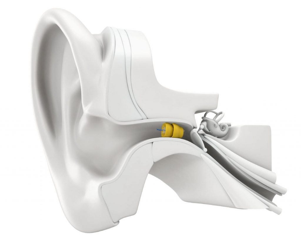 Introducing Lyric – the new 100% invisible extended wear hearing aid